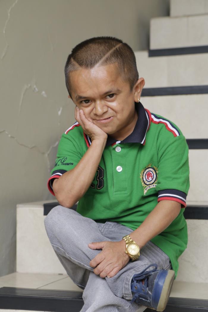 Jorgito-James-Rodríguez-chupalo