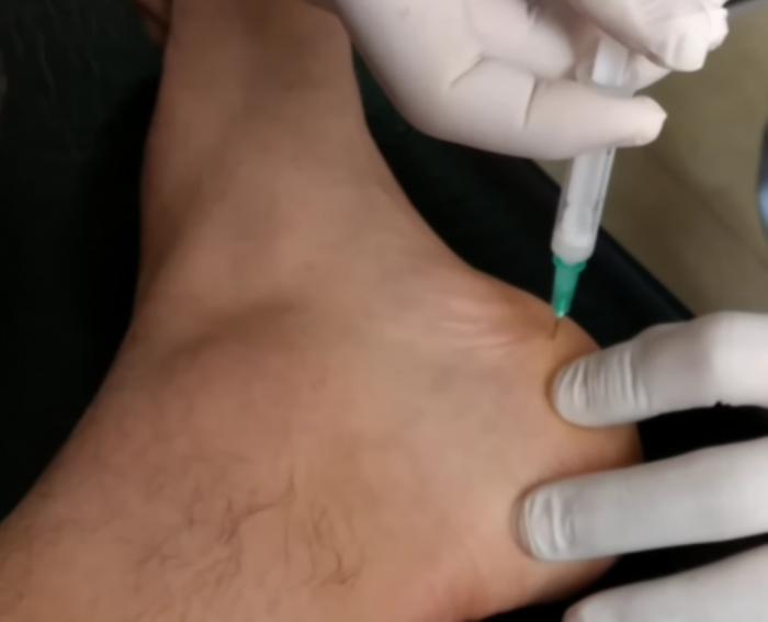 Las inflitraciones con esteroides ayudan a menguar el dolor del talón