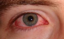 800px-Pink_eye