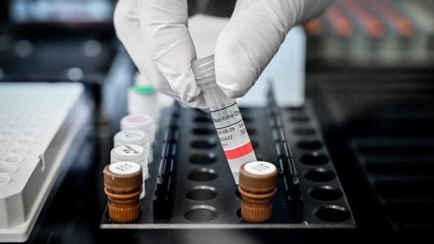 En una segunda parte del estudio, el equipo de investigación también analizó cerca de 2.000 mutaciones que han surgido en el SARS-CoV-2 desde el inicio de la pandemia.