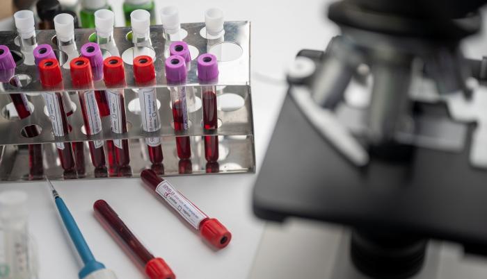 Vacunas contra el coronavirus. Imagen de stock de Pixabay. 21 de mayo de 2020.