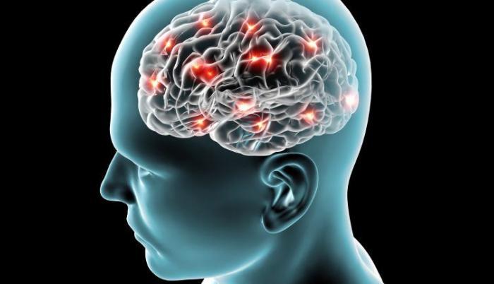 disfuncin-cerebral-imagen-768x432